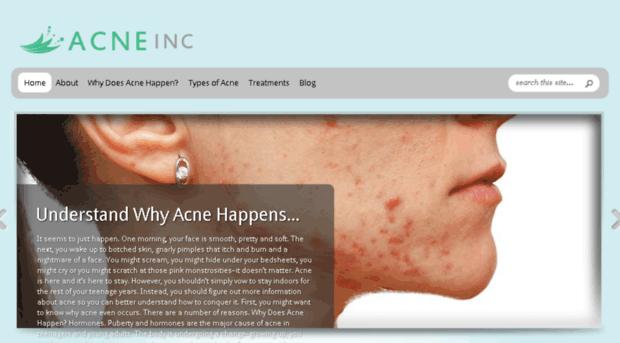 understanding acne essay