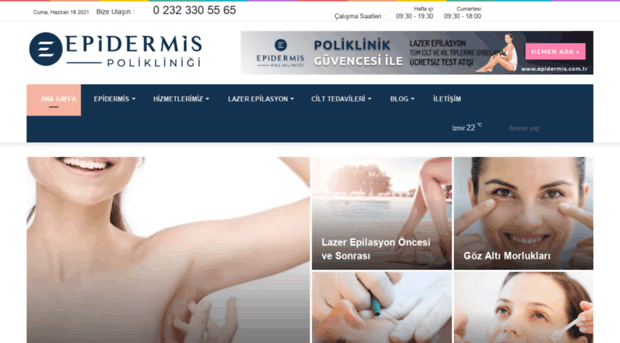epidermis.com.tr
