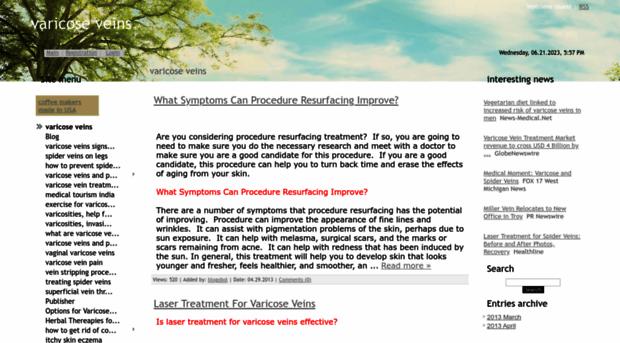 varicoseveins.ucoz.net